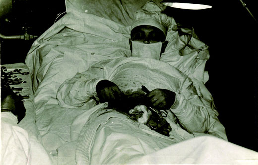 Soviet surgeon removes his own appendix in Antarctica, 1961