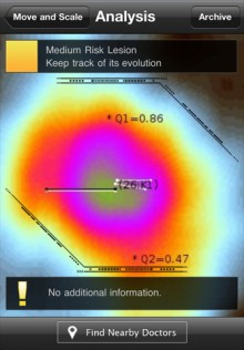 mzl.ckbuxjkf.320x480 75 220x316 Skin Scan for iPhone checks your moles for signs of skin cancer