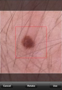 mzl.rqyntoti.320x480 75 220x316 Skin Scan for iPhone checks your moles for signs of skin cancer