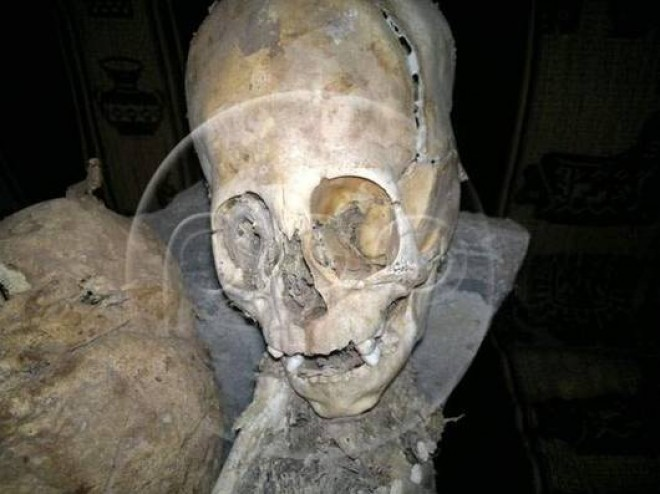 Scientists think this triangular skull belongs to an alien