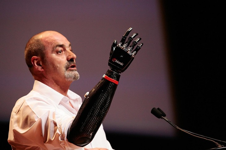 A bionic arm gives life back to a deserving man