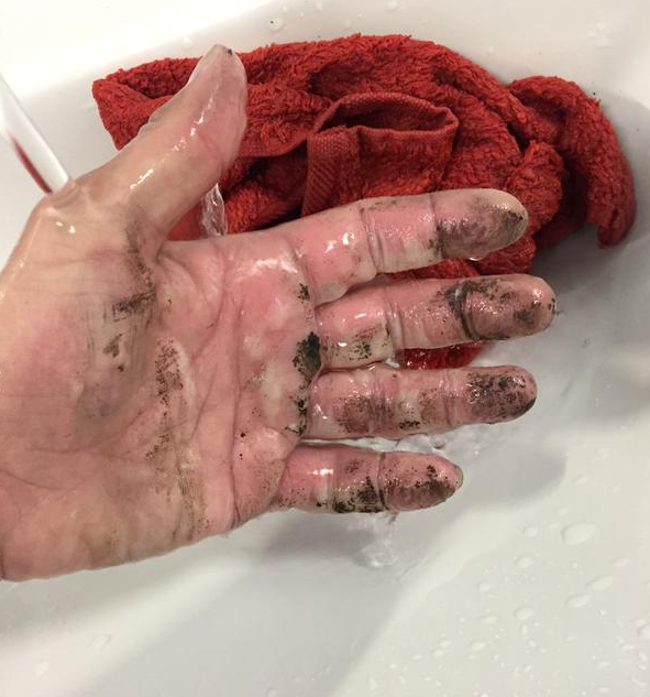 Katy Emslie's badly burnt hand, which resulted from trying to extinguish a flaming EE Power Bar.