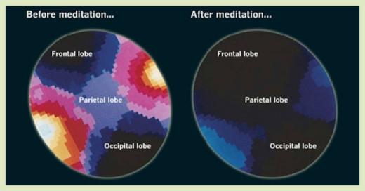 brainonmeditation