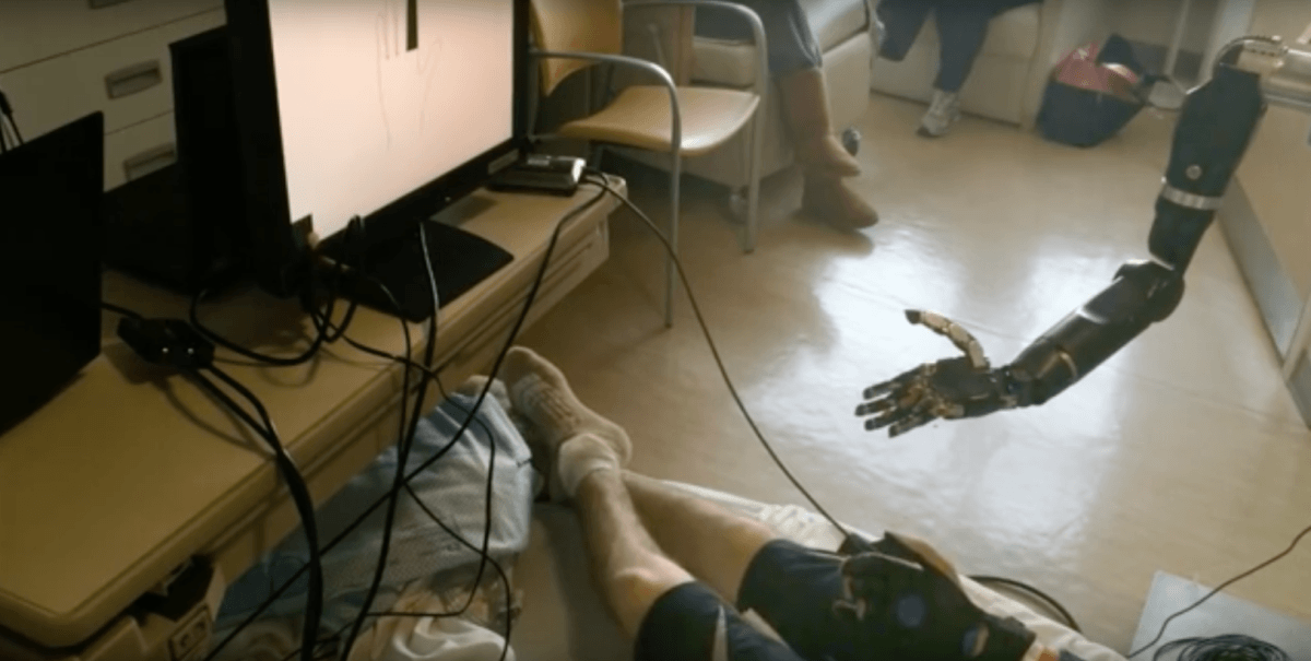 This mind-controlled prosthetic arm can control individual finger movements