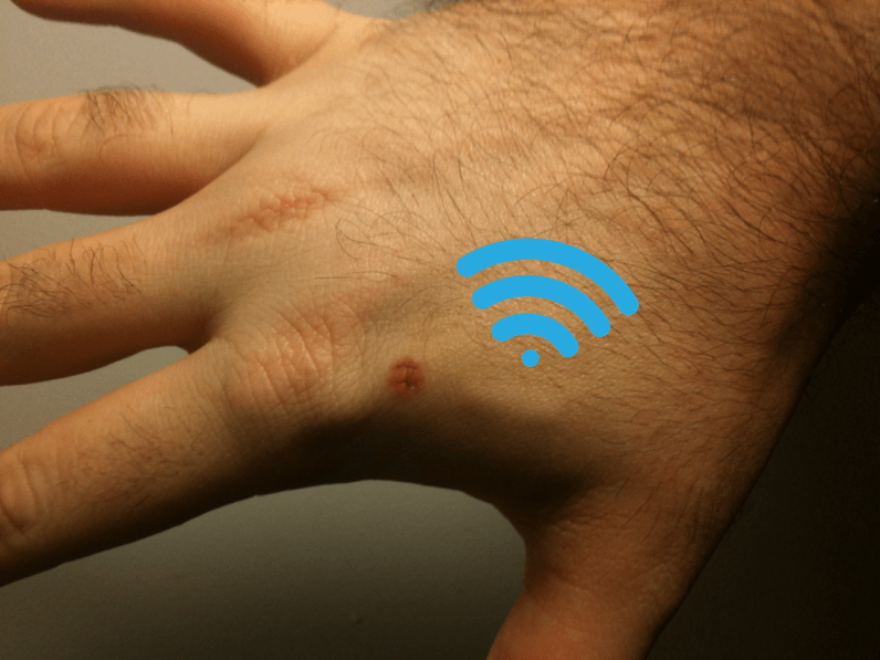 This tech festival is implanting microchips instead of using