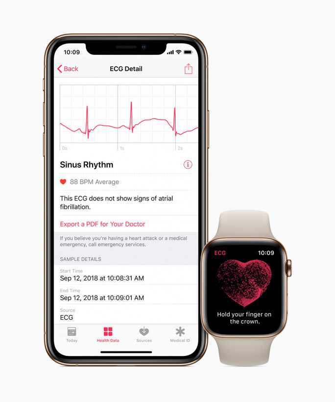 Once you've recorded your ECG, you can review it on your iPhone, and also export a PDF to share with your doctor