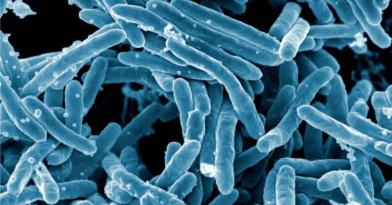 MIT algorithm discovers antibiotic that can fight ...