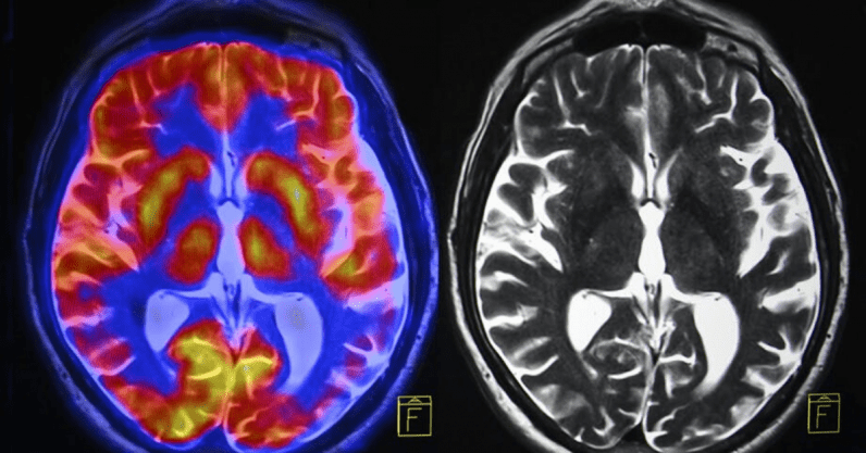 How chronic stress changes the brain — and what you can do to reverse the damage
