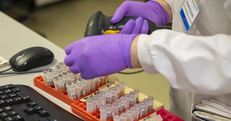 Researchers are using these mathematical models to predict the spread of coronavirus