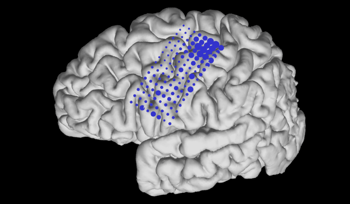 This brain rendering shows the weighting of the electrodes that drove the BCI control.
