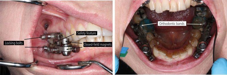 DentalSlim device design
